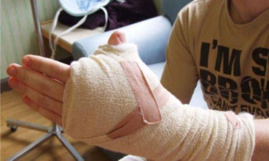 The Unusual Thumb Surgery